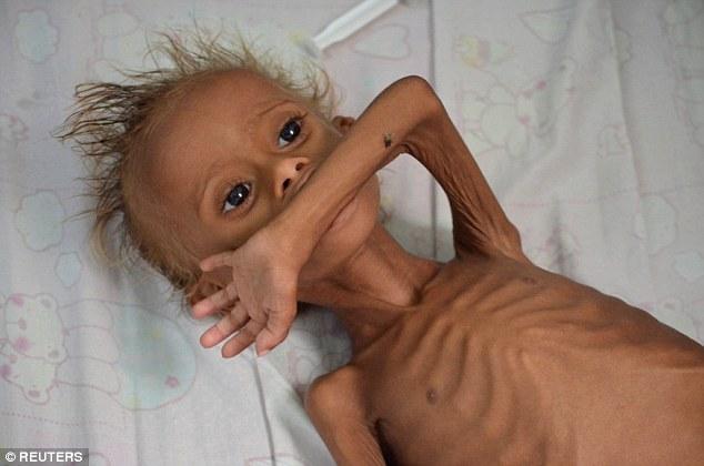 منظمة الصحة العالمية: كل 5 ثواني يموت طفل من الجوع والعطش