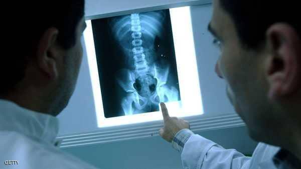 من سرطان الثدي للدورة الشهرية.. 6 أمراض نسائية تصيب الرجال
