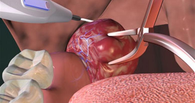 مخاطر استئصال اللوزتين واللحمية على الجهاز التنفسي