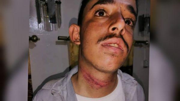 """جريمة مروعة ضد (أغبري ) جديد تعرض للتعذيب الشديد في صنعاء """"صورة"""""""