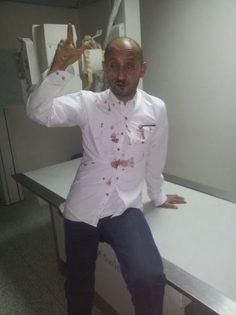 شاهد : الحوثيون يعتدون على صحفي عقب نقده فساد مشرفيهم