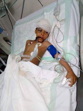 مقتل طفل برصاص مليشيا الحوثي بصنعاء